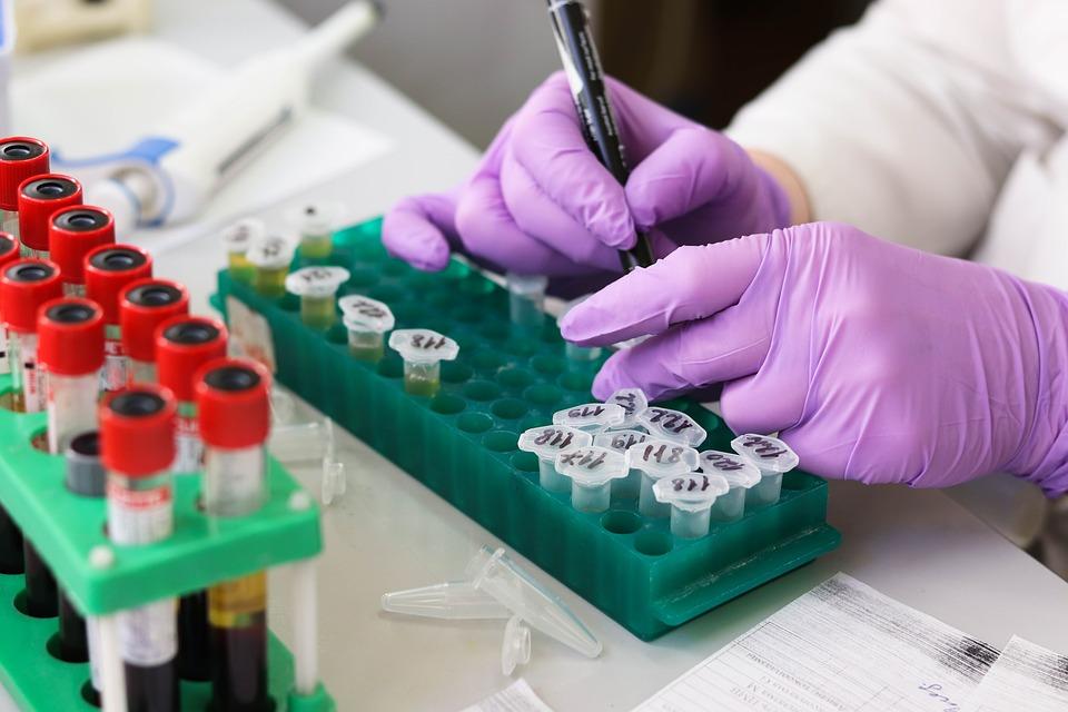 U srpskim sredinama na KiM jedna osoba preminula, 61 novozaražena korona virusom
