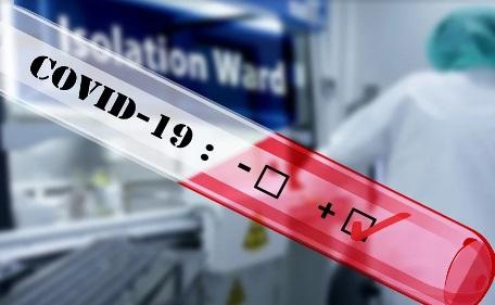 Testirano 2.323 zdravstvenih radnika, 260 pozitivno
