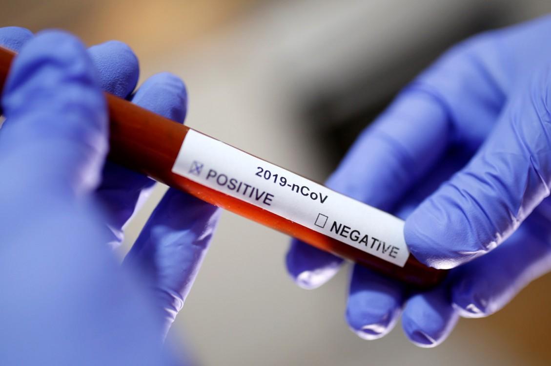Nema opuštanja, vakcinacija jedini način za izlazak iz pandemije