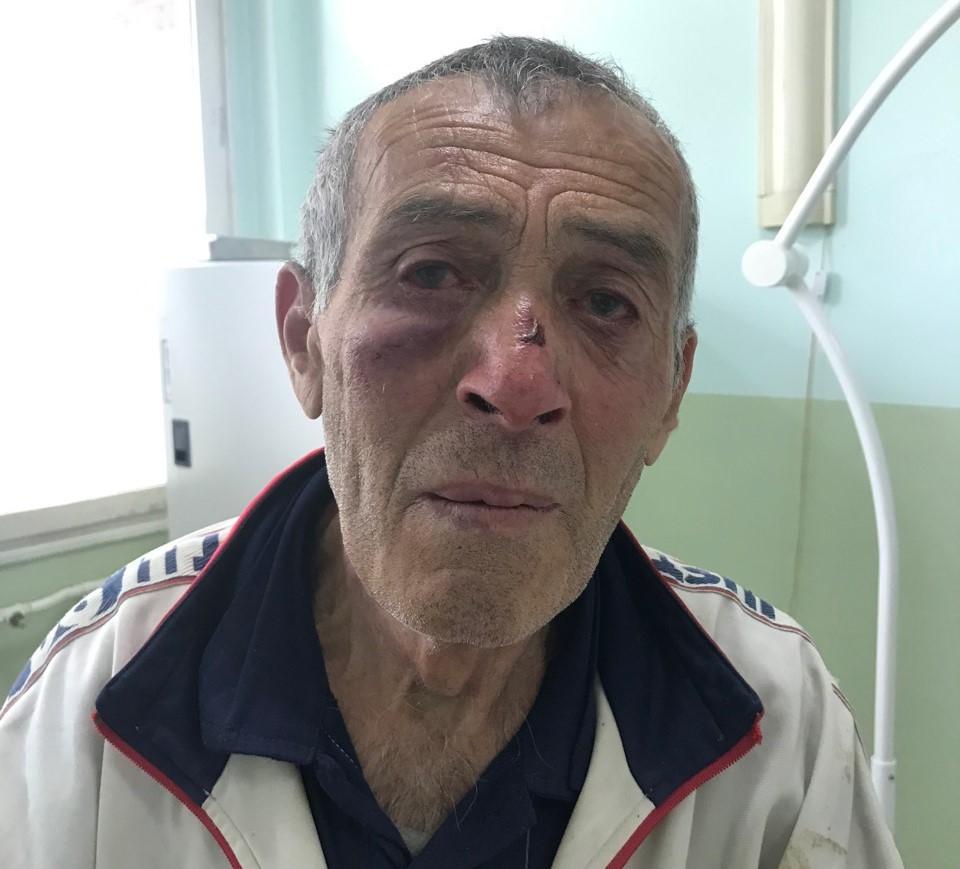 Prištinski specijalci brutalno prebili gluvonemog Srbina!