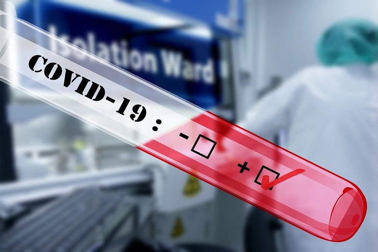 K.Mitrovica: Od 61 testiranih, 53 pozitivno na koronavirus