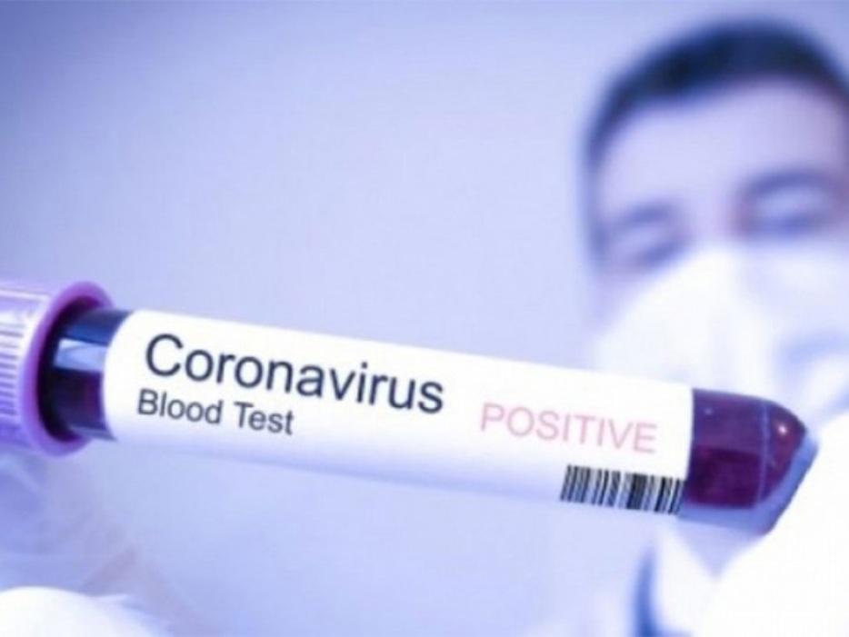 Prvi slučaj koronavirusa u Republici Srpskoj