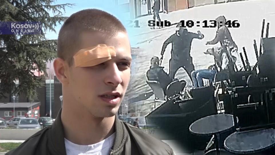 Napadnuti mladići: Sve vreme su psovali na albanskom, dok su nas udarali
