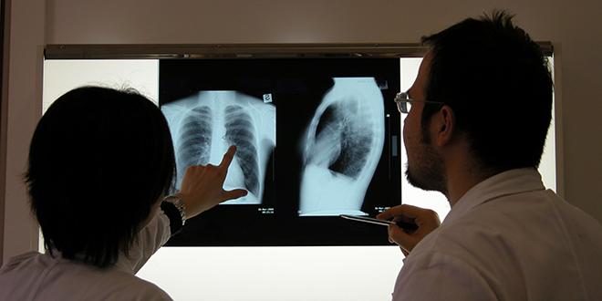 Od Nove godine nove terapije i za karcinom pluća i hepatitis