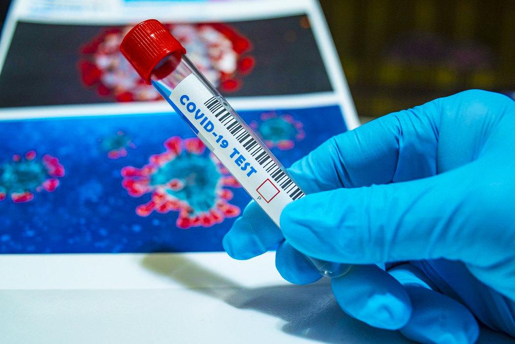 Severna Makedonija zahteva PCR test za građane Srbije